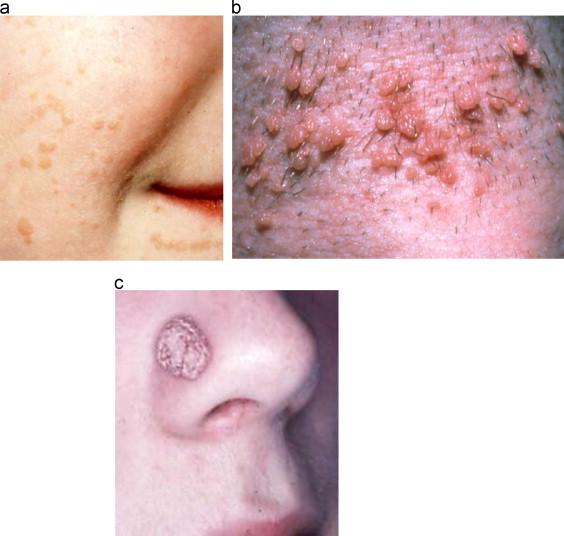 human papillomavirus skin lesions)