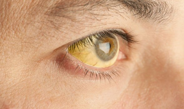 metastatic cancer eyes symptoms