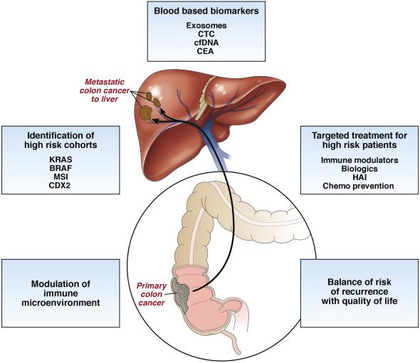 metastatic cancer of the liver