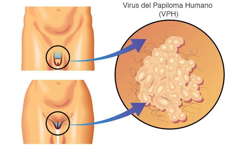 que es la papiloma virus)