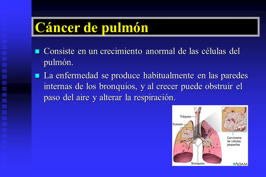 Cancer pulmonar - Wikipedia