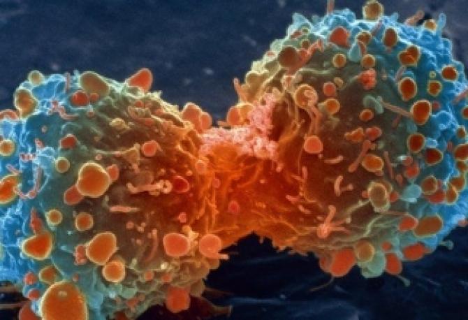 cancer de plamani cu metastaze