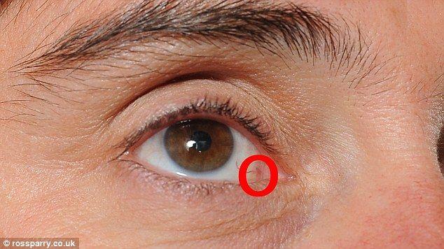 Melanomul malign ocular, mai frecvent la persoanele cu ochi de culoare deschisa