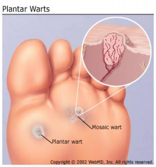foot wart removal singapore