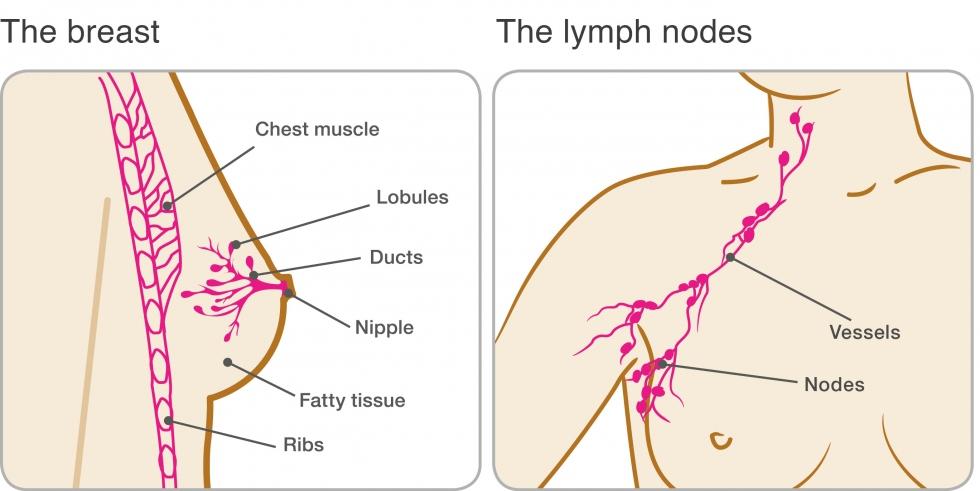 papiloma humano como se contagia cancerul pulmonar cu metastaze osoase