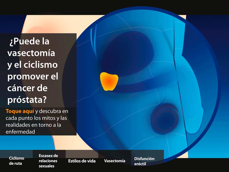 cancer prostata vasectomia)