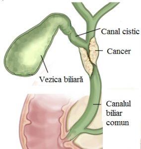 simptome cancer vezica biliara)