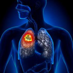 cancerul pulmonar simptomatologie