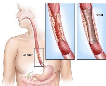 cancer pe esofag simptome