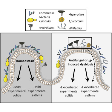 EBSCOhost     Anorexia nervosa and gut microbiota.