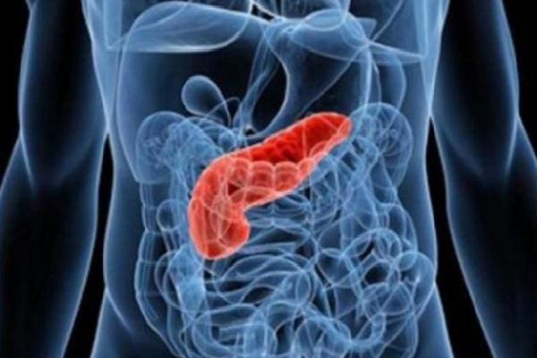 O nouă metodă de detectare a cancerului pancreatic - Revista Galenus