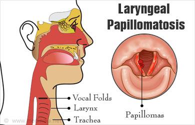 laryngeal papillomas genital warts)