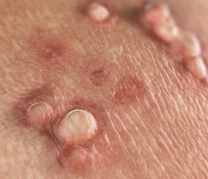 Negi genitale - simptome și tratament