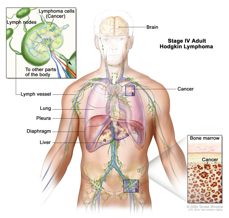 lymphatic cancer hodgkins disease)