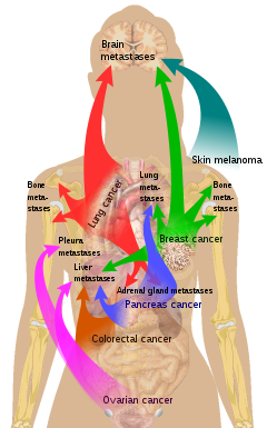metastatic cancer means)