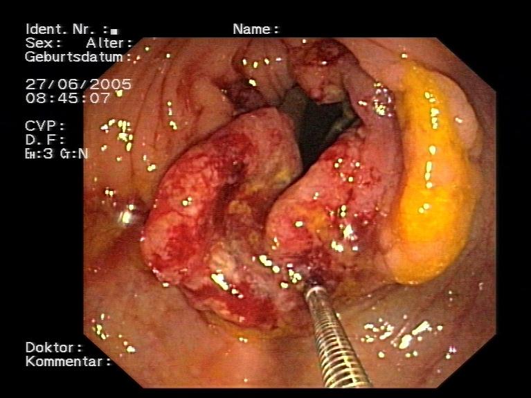 karpas un papilomas cancer agresiv prostata