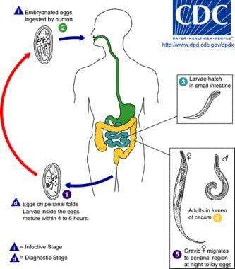 enterobiasis epidemiology)