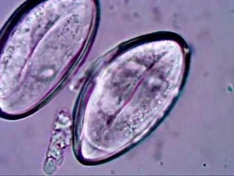 enterobius vermicularis ne demek
