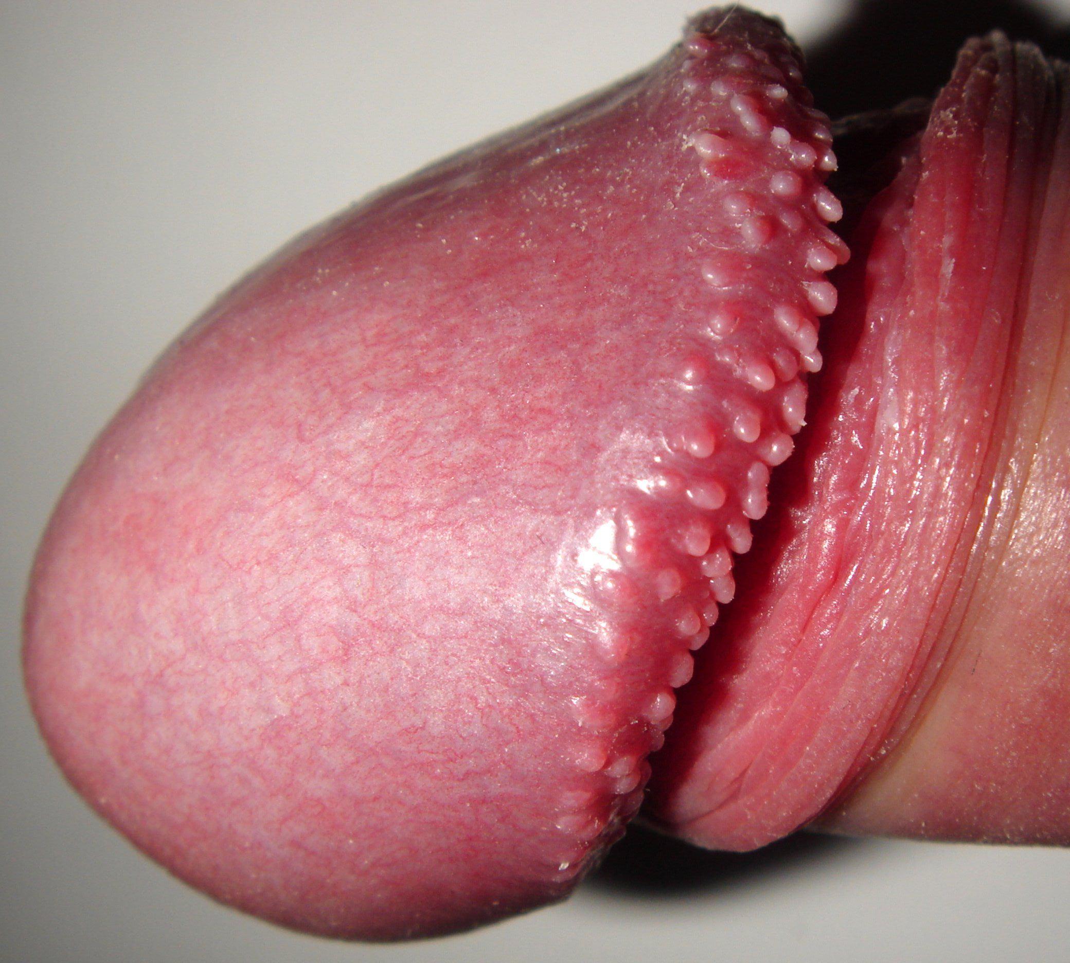 papilom dermatologie