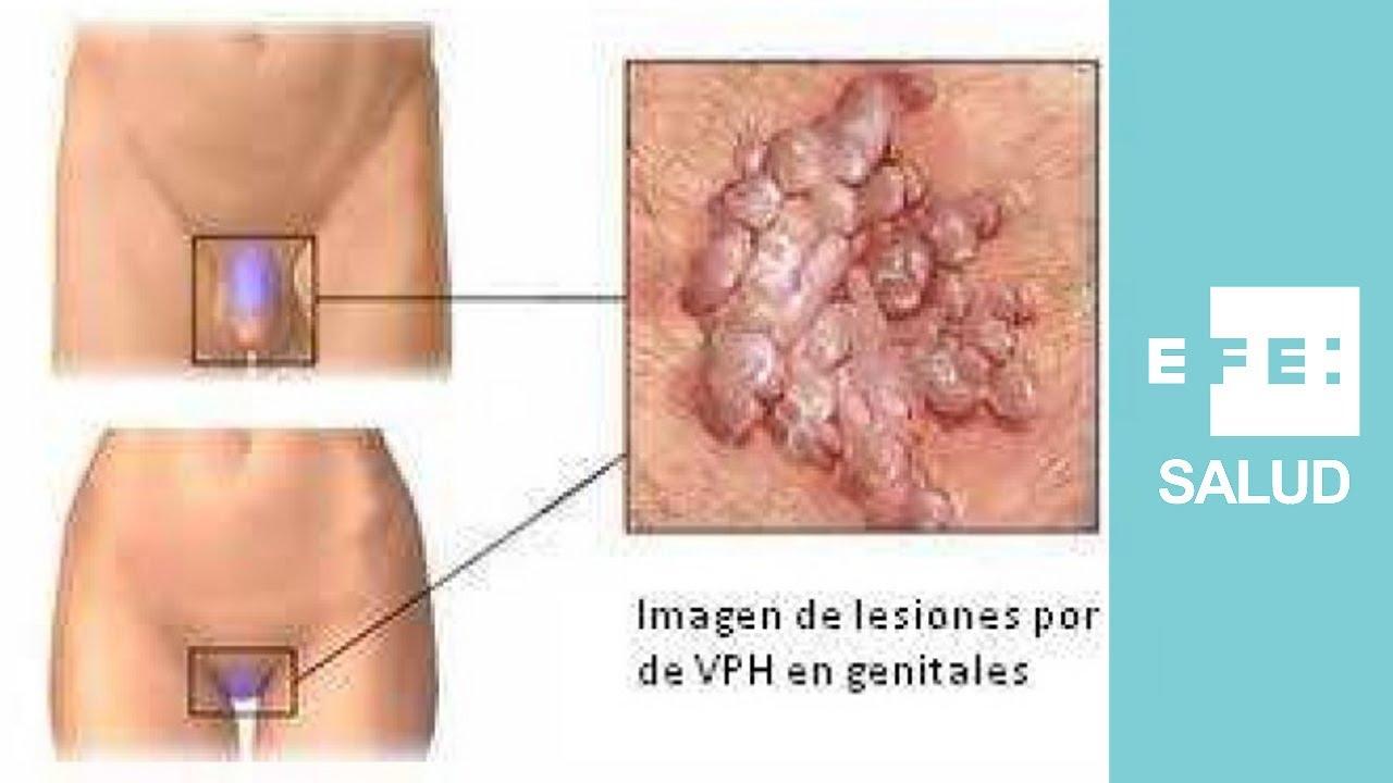 como aparece el virus del papiloma humano en hombres)