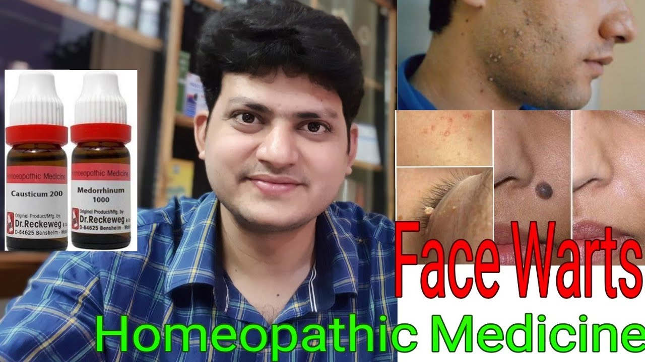 papilloma homeopathic remedy