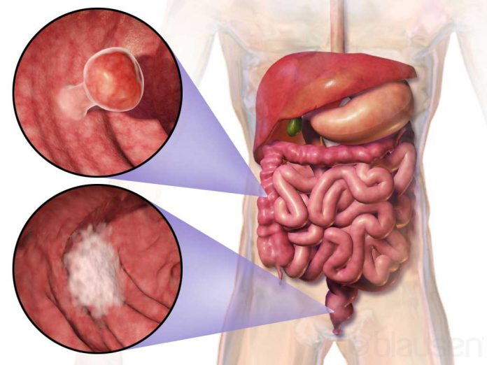 cancer de colon simptome sunt)