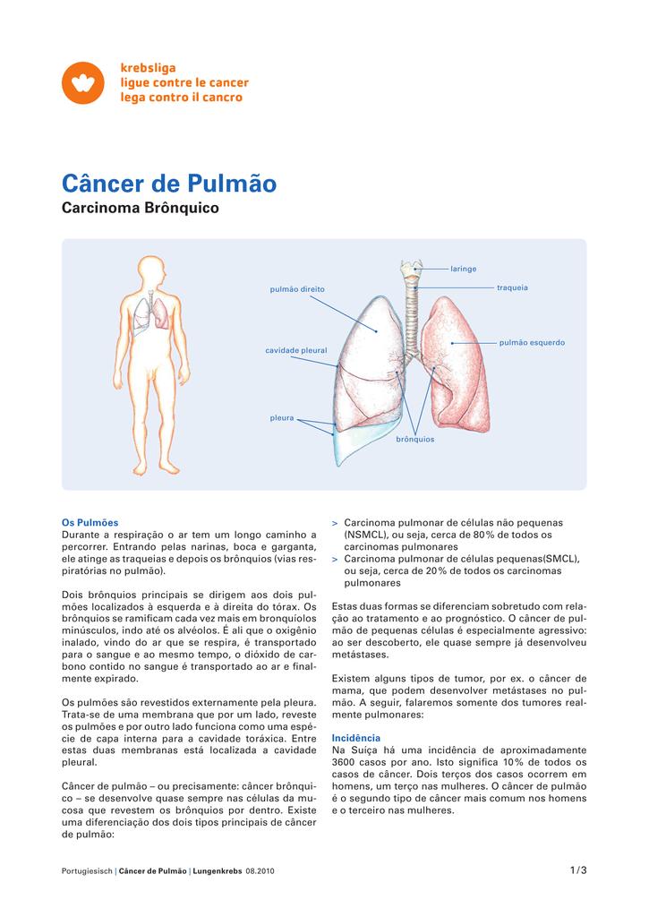 cancer laringe metastasis)