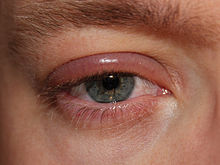 papilloma of eyelid icd 10