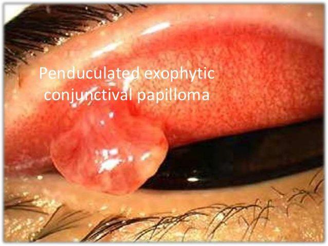 Papilloma a codurilor din spate μb 10