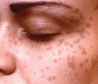 hpv skin pigmentation