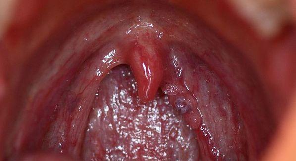papiloma humano y sus sintomas