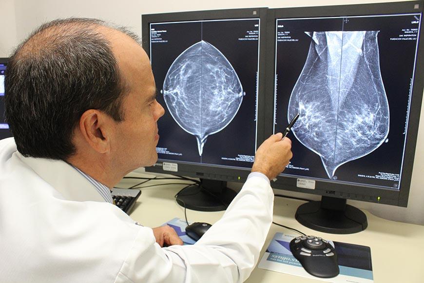 cancer mama hormonal negativo cancerul mamar inflamator