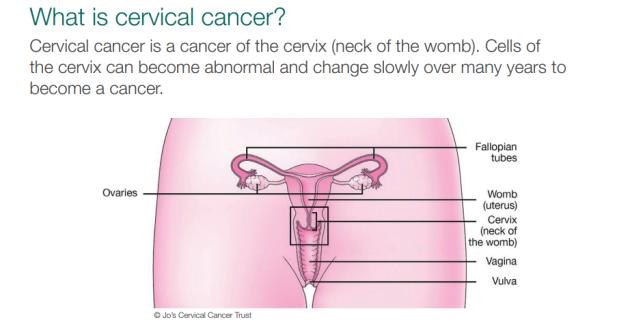 cervical cancer for virgins)