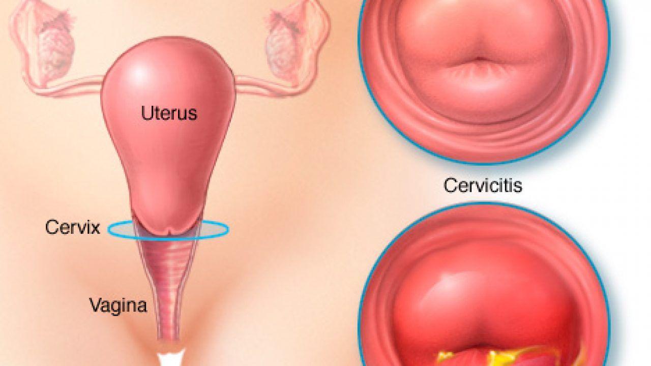 cancer col uterin la menopauza)