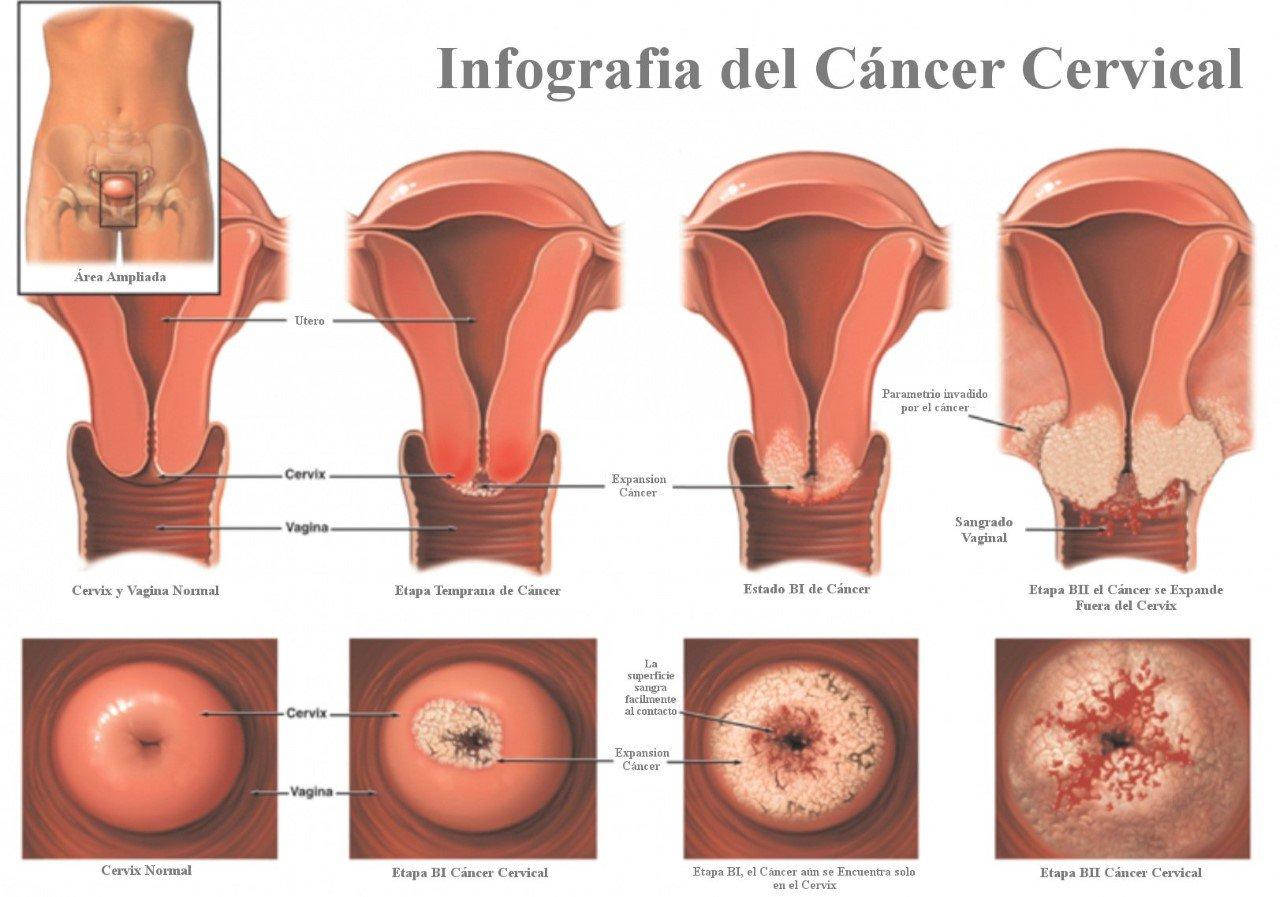 virus papiloma humano entre mujeres