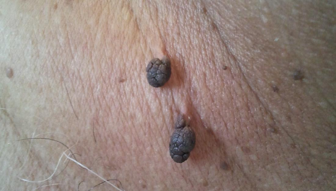is a papilloma a skin tag