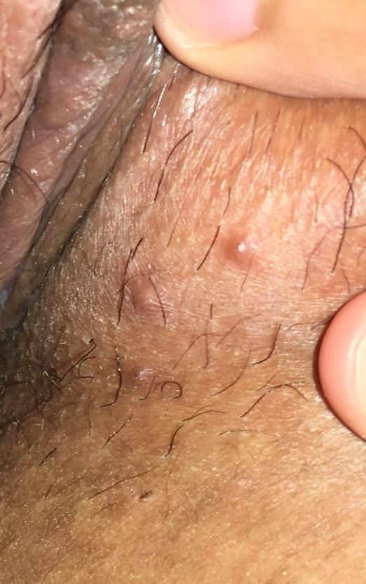 hpv versus herpes)