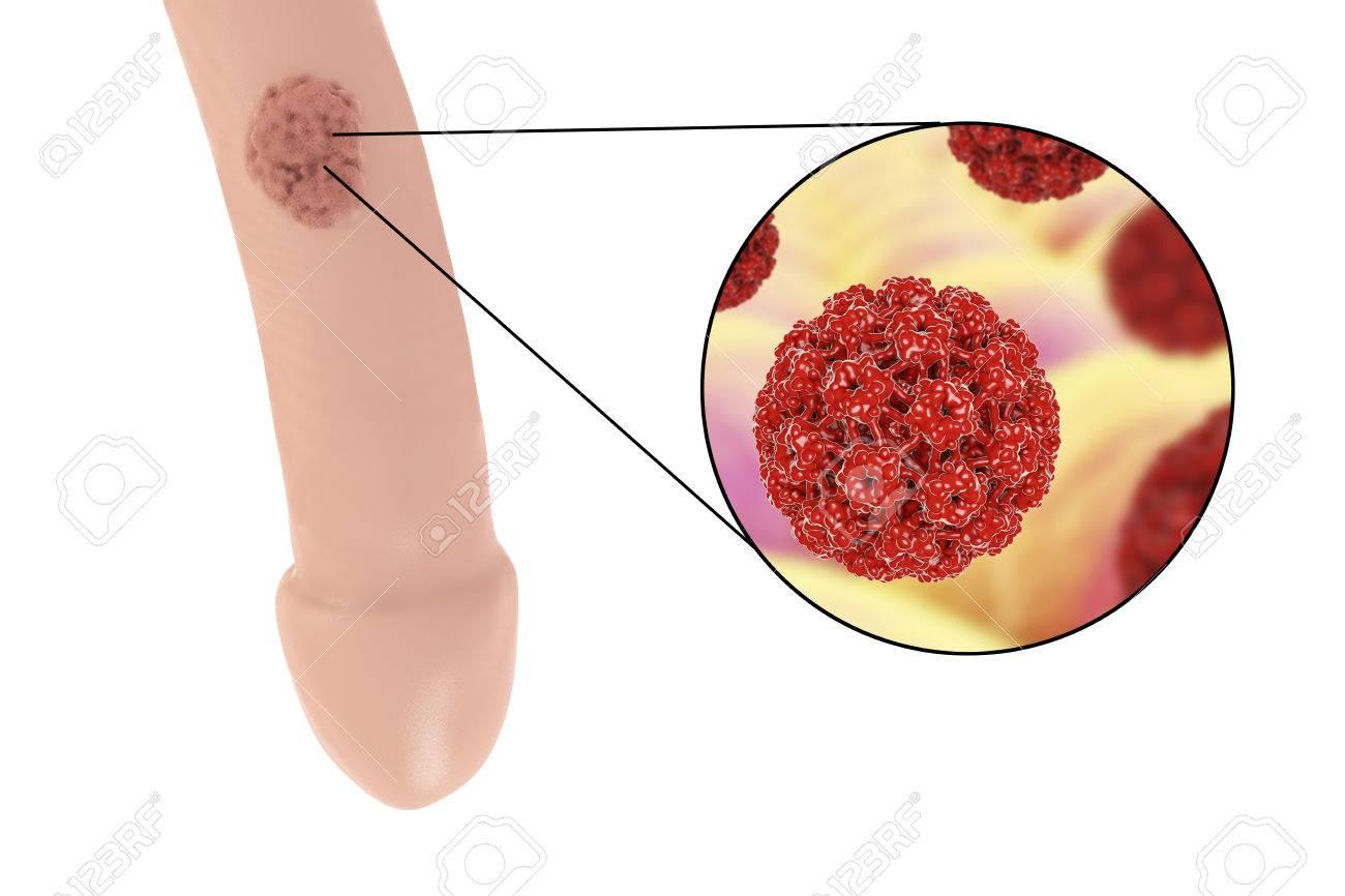 human papiloma virus lesions)