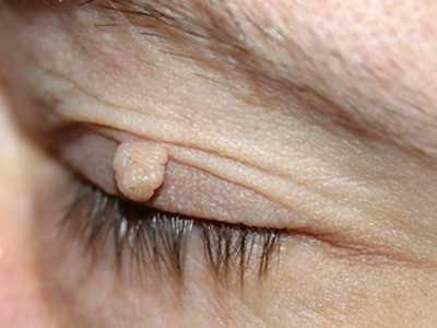 wart on eyelid images)