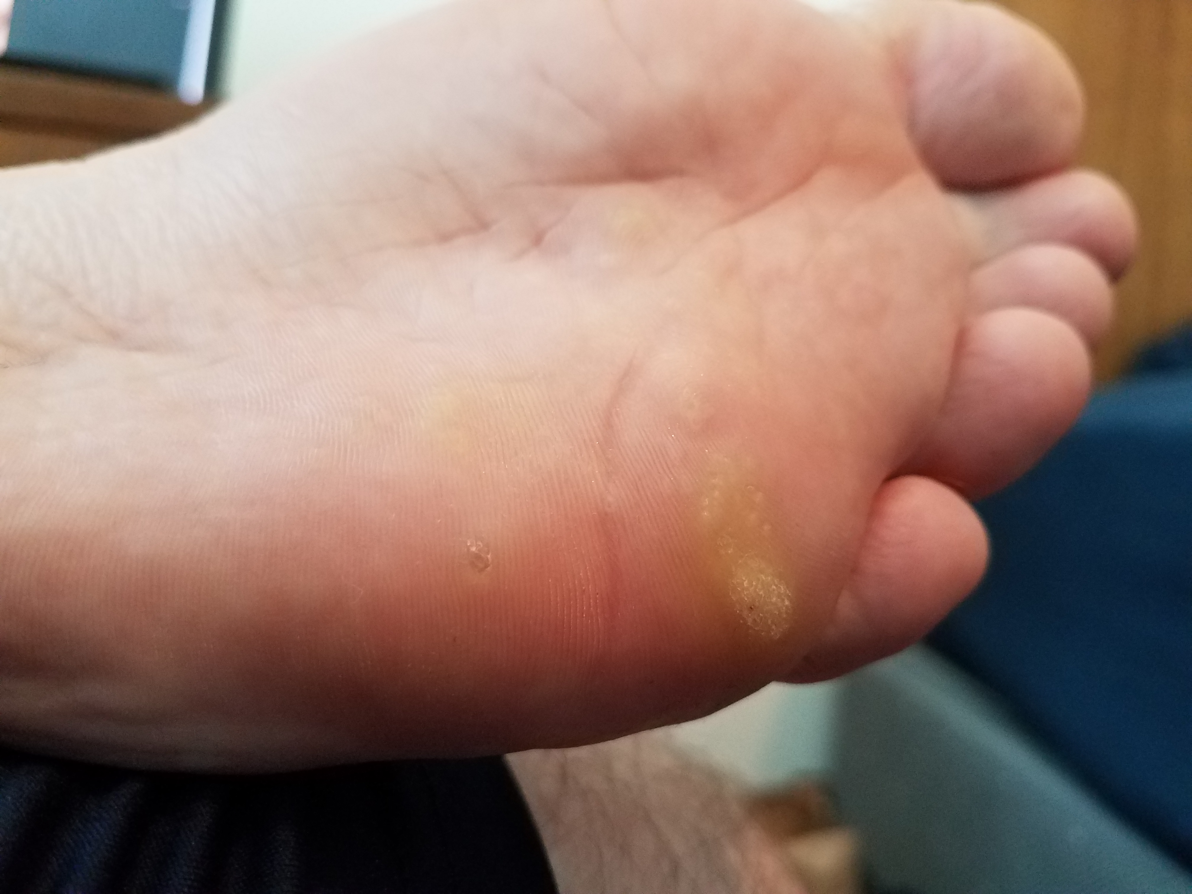 warts on foot spreading)