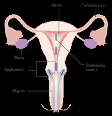 cancer of uterine cervix)