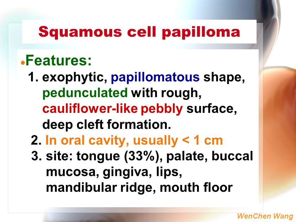 Squamous cell papilloma slideshare Hpv and head and neck cancer ppt
