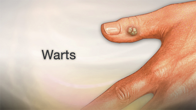 hpv warts reappearing)