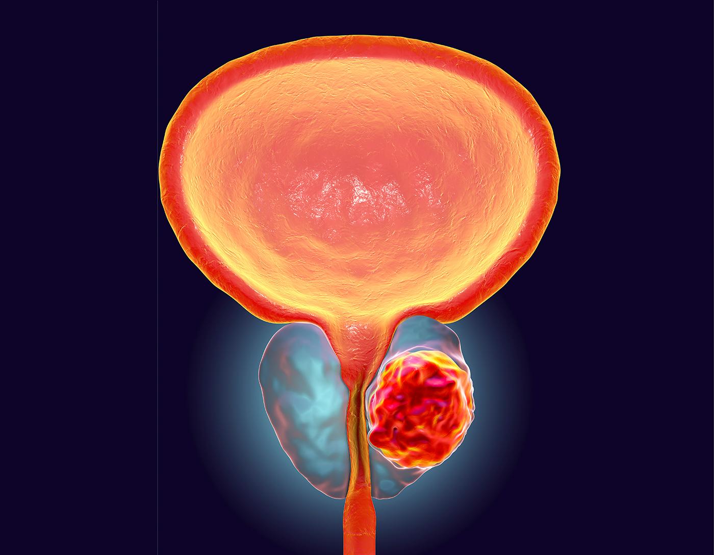 Cancerul agresiv de prostata, detectat la timp printr-un nou test de sange