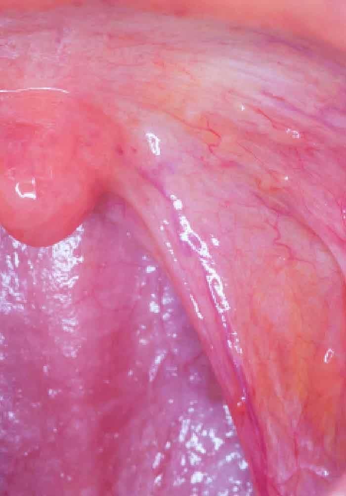 Cancerul buzelor