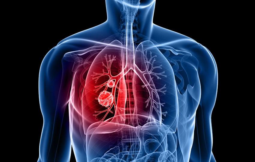 cancer pulmonar analize virus del papiloma humana