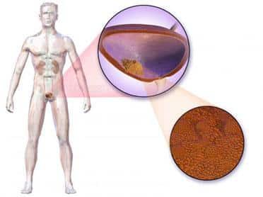 Cancerul de vezică, risc uriaş de recidivă
