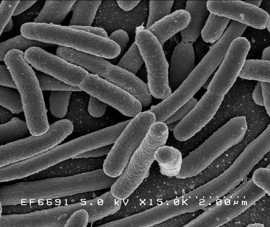 bacterii e)