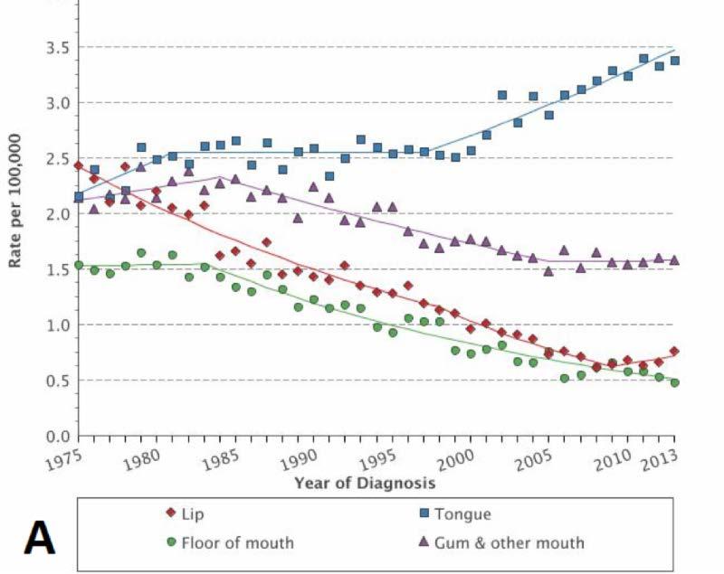 Cancer de faringe - Tot ce trebuie să ştii | Cancer