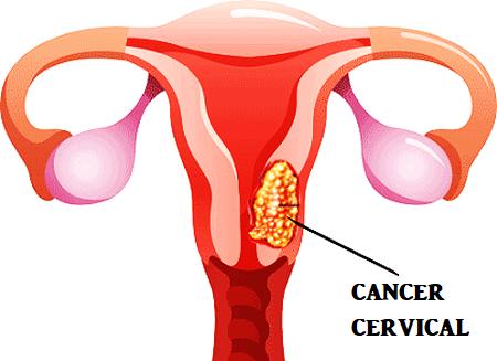 Infecţia cu HPV, factorul de risc cel mai important în apariţia cancerului de col uterin